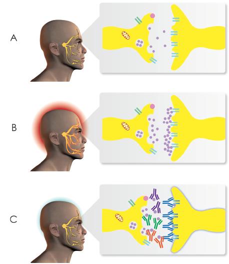 tratamientos vs migraña